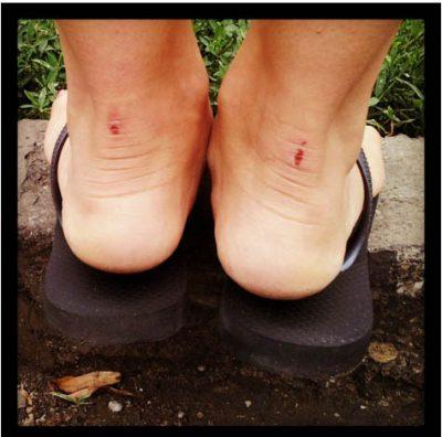 feridas-sapatos