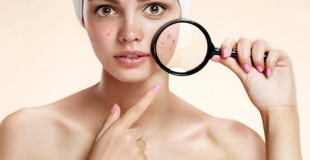 3 especiarias que você pode usar para se livrar do acne